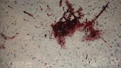 Photo of Verletzungen durch Drohnen – so bitte nicht!